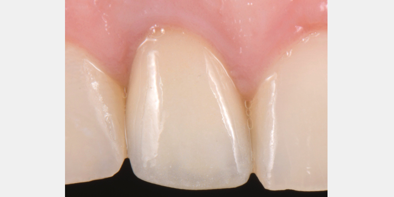 Final view after cementation.