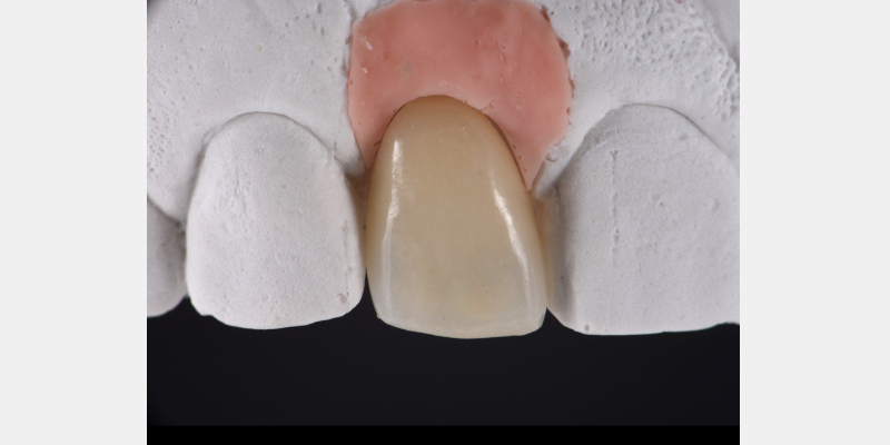 Layered zirconia crown on the master cast.