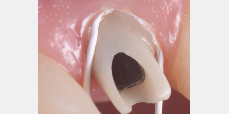 Teflon tape is packed in the space between the abutment and the soft tissue.