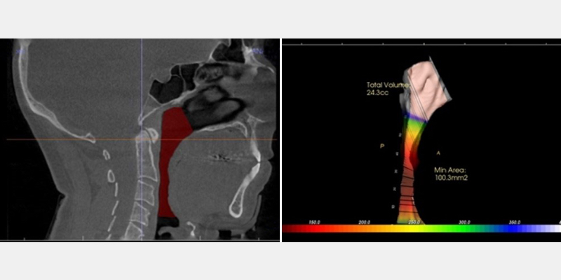 CBCT of a patient's airway volume with OSA.