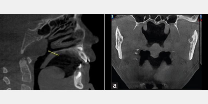 CBCT of parapharyngeal region demonstrating enlarged adenoids and tonsils.