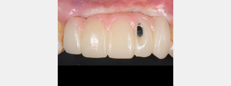 Seating the provisional implant-supported restoration.