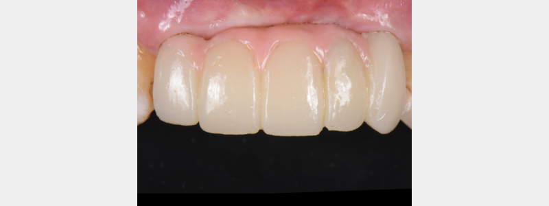 Provisional restoration with composite-filled access screw.
