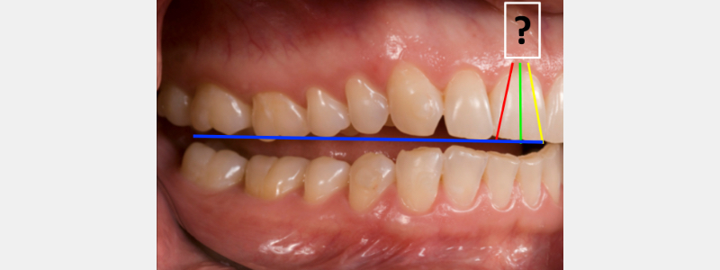 Lateral teeth apart with tooth angulation lines.