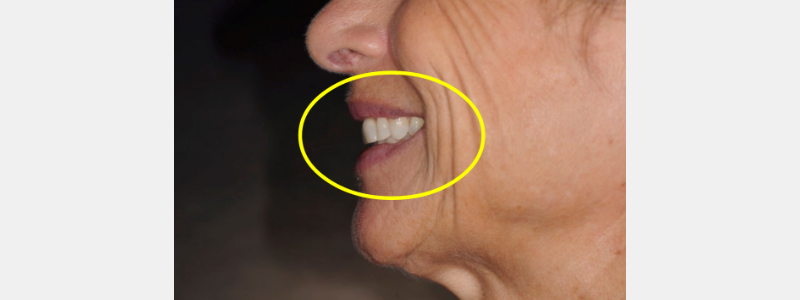 Close-up of patient smiling, showing nose-to-chin proximity.