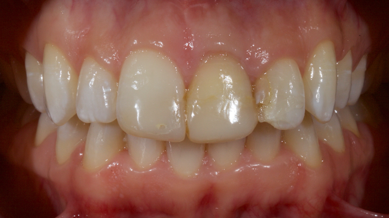 Example of discolored anterior teeth with discolored left central incisor.