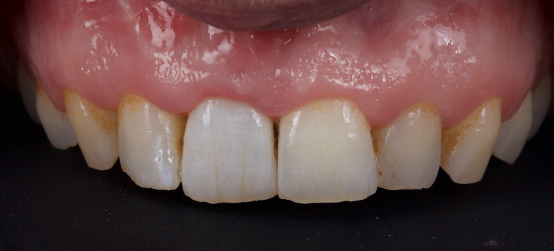 The patient returned for review after successful whitening.