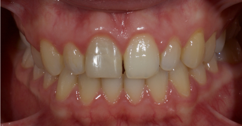 A young patient with a discolored upper right central incisor.