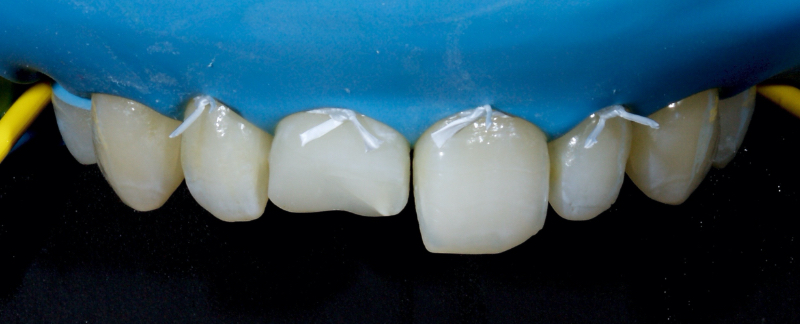 The existing restoration was removed under local anesthesia.