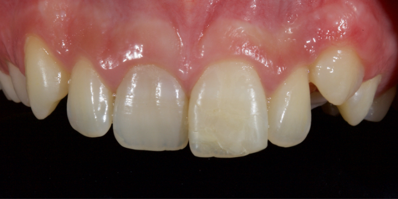Patient with a larger, discolored right front tooth.