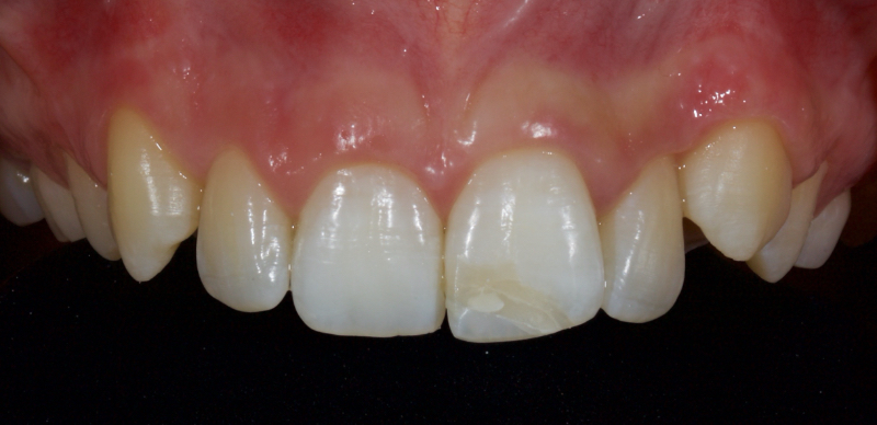The front tooth after successfully bleaching over 36 hours.