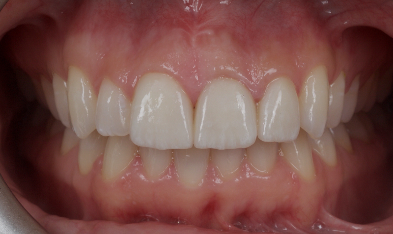 Discolored left central incisor treated with lithium disilicate ceramic veneers.
