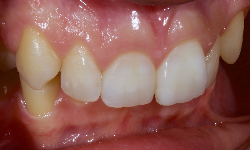 The tooth restored with direct composite.