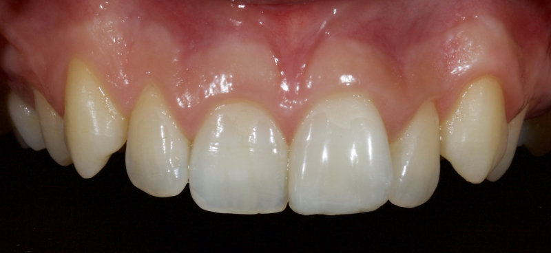Second image showing tooth restored with direct composite.