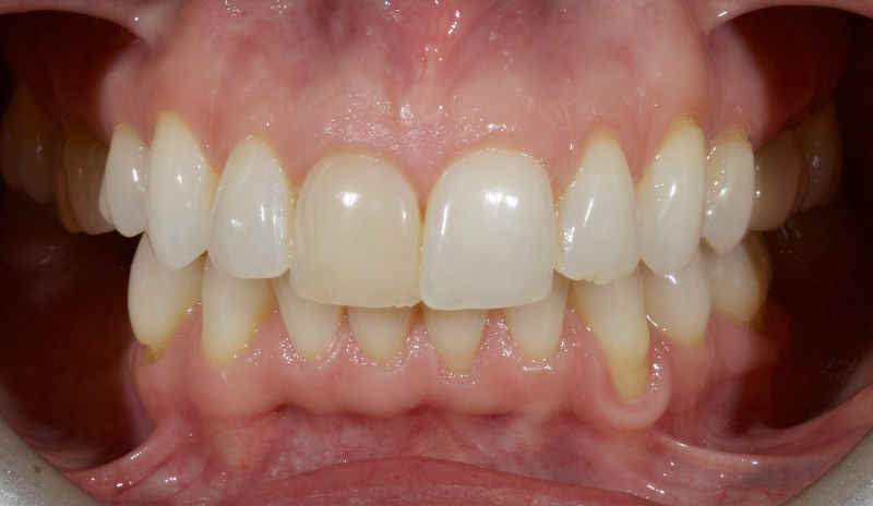 Example of a highly conservative approach before treatment.