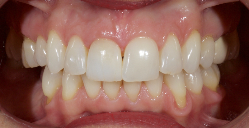 Example of a highly conservative approach after treatment.