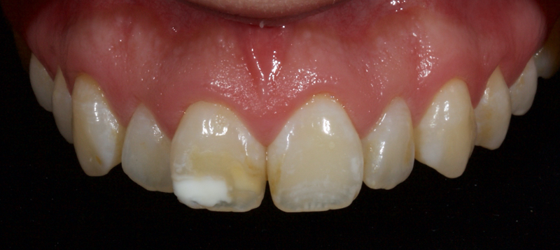 Right central incisor after trauma with brown and white discoloration.