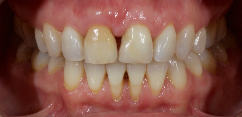 Patient with Calcific Metamorphosis of the upper right central incisor.