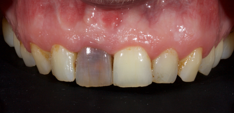 Modified Walking Bleach Approach in which the patient presented with a discolored upper right central incisor.