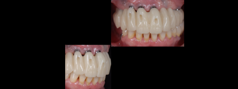 The provisional was milled in PMMA and tried in the patient's mouth.
