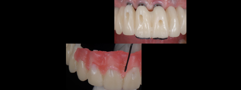 The desired incisal edge position was validated and Dr. Mitrani's clinical team added wax to the gingival area to develop more ideal tooth proportions.