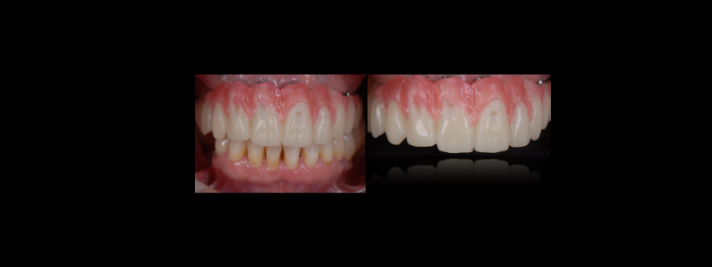 This was tried in the patient's mouth to make sure the esthetics were closer to ideal.