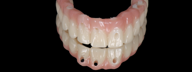 This was approved by the patient. The clinical team converted the wax into pink acrylic resin.
