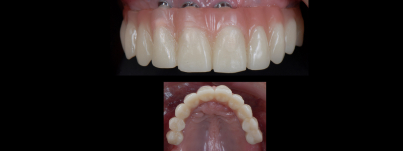 The access holes were then obliterated utilizing Teflon tape and composite resin and the occlusion was adjusted and polished.