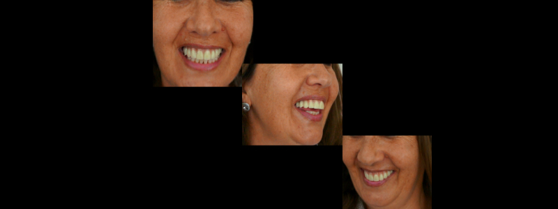 Shooting a video with the temporary in the patient's mouth allows clinicians to carefully analyze the dynamics of the upper lip and assess if the transition line between the temporary and the gingiva is safely concealed underneath the lip.