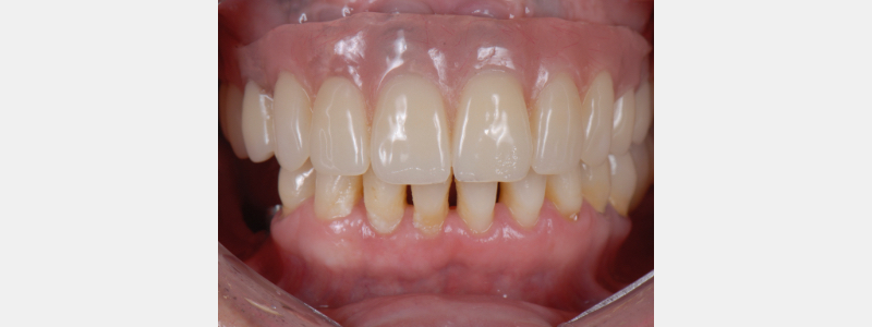 Example of patient of Dr. Mitrani's who was disappointed and frustrated because she was promised a fixed reconstruction and the previous dentist gave her a removable prosthesis as a final restoration.