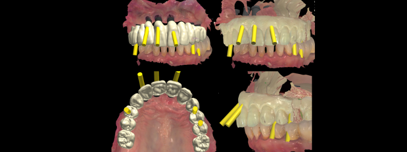 Dr. Mitrani utilized an intraoral scanner to scan the existing removable prosthesis, scan bodies on the implants, occlusal relationship and lower arch.